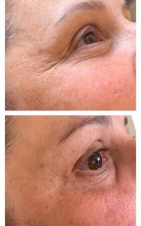 En endermologi behandling på ansikt