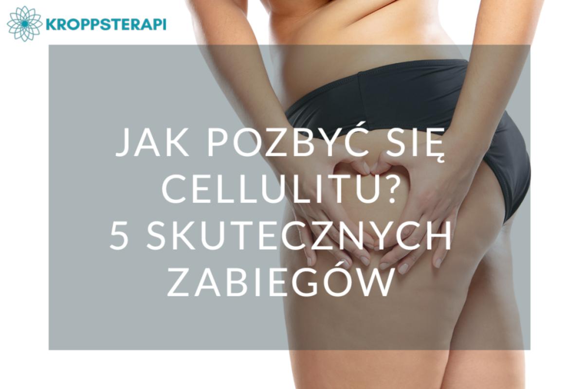 Jak pozbyć się cellulitu 5 skutecznych zabiegów na cellulit